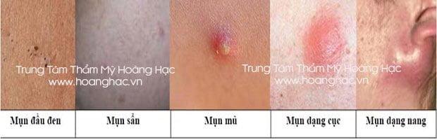 Nguyen-tac-tri-mun-trung-ca-an-toan-va-hieu-qua-01
