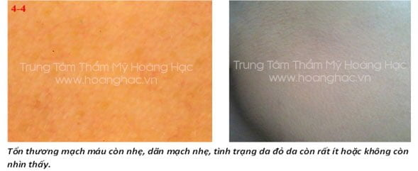 hien-truong-do-da-trong-viem-da-corticoid-05