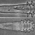 tuong-quan-giua-viem-da-corticoid-va-loai-ve-demodex-tren-nguoi