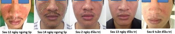 hoi-vnba-va-bao-cao-khoa-hoc-ve-viem-da-corticoid_23233969