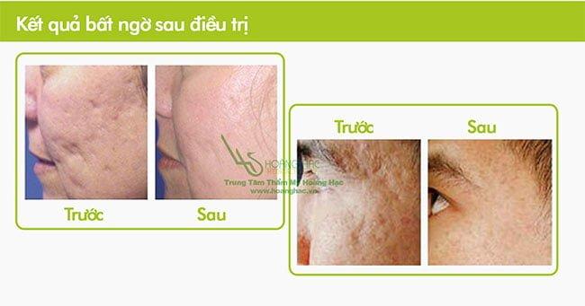 kết quả điều trị sẹo lõm